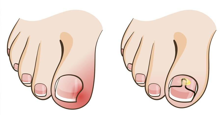 Протезирование ногтя большого пальца ноги